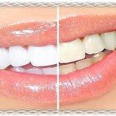 Білі зуби в домашніх умовах. Відгуки.