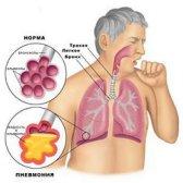 Які симптоми є у хламідіозу?