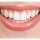 Відбілювання зубів. Лазерне відбілювання зубів