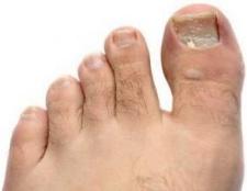 Хвороби нігтів на ногах