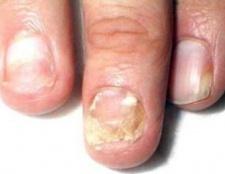Хвороби нігтів на руках