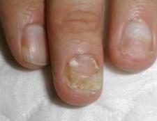 Кандидоз нігтів