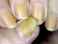 Оніхомікоз нігтів