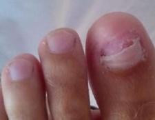 Протезування нігтів
