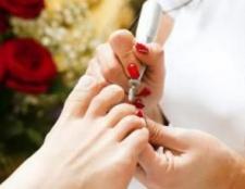 Видалення нігтів уражених грибком