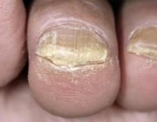 Потовщення нігтів на ногах